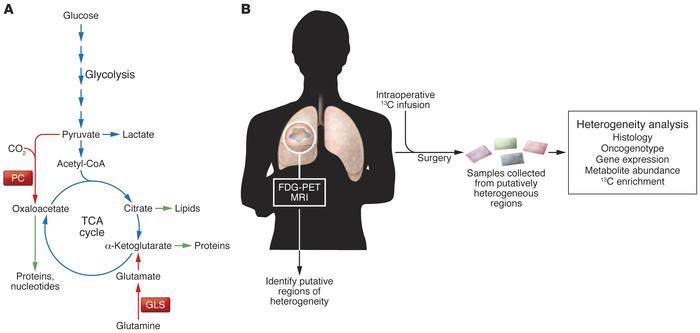 Analysis of human lung cancer metabolism in vivo. (A) Simplified view of...