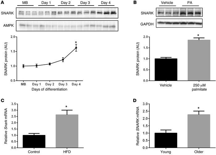 SNARK expression in skeletal muscle. (A) SNARK protein was measured in C...