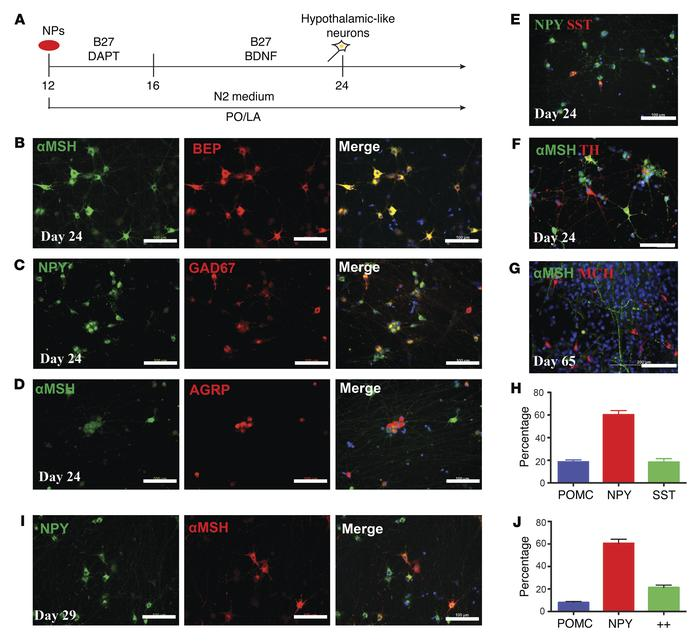 Neurons derived from NKX2.1+FoxG1– progenitors recapitulate hypothalamic...