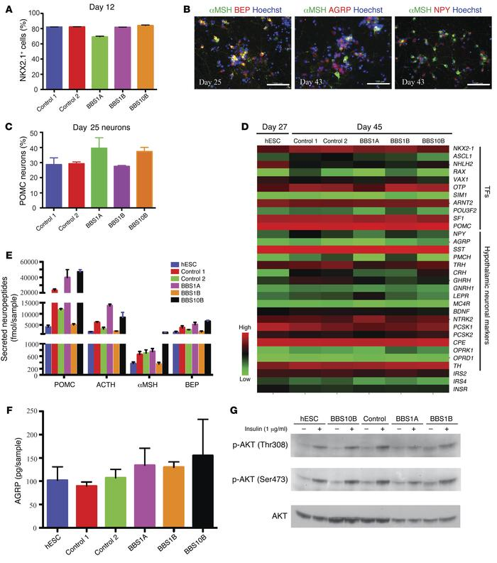 Efficient generation of hypothalamic ARC-like neurons from iPSCs generat...