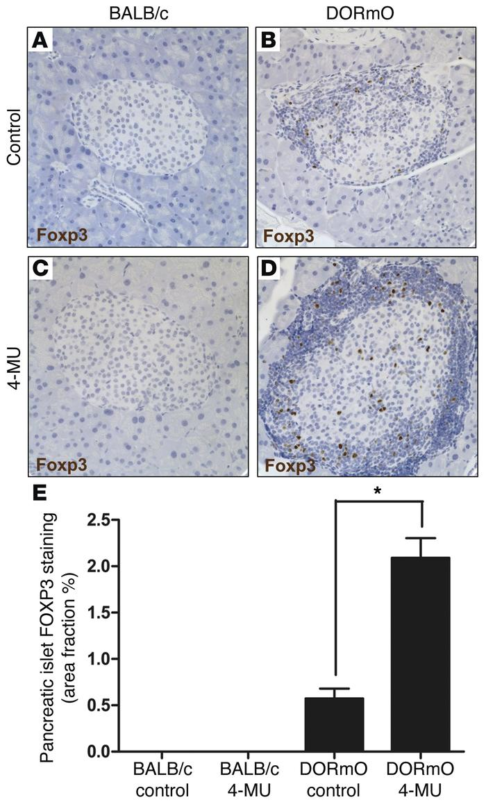 4-MU treatment increases islet FOXP3+ Tregs. (A–D) FOXP3 staining of rep...
