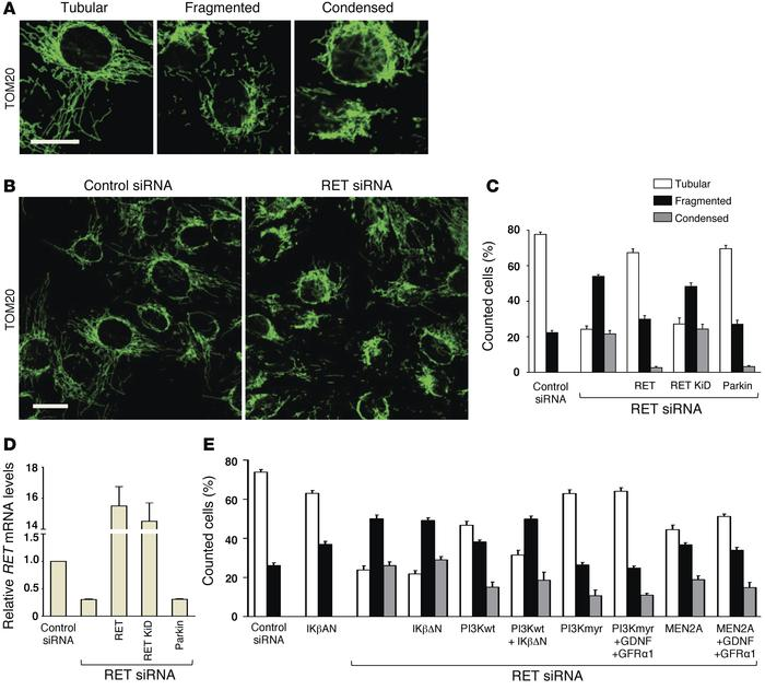 RET knockdown in SH-SY5Y cells induces mitochondrial network alterations...