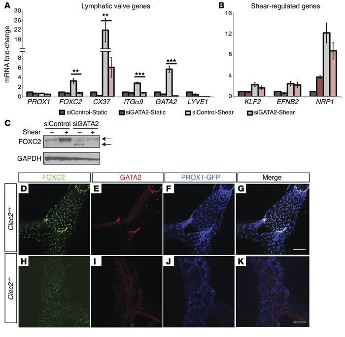 GATA2 is required for flow-induced expression of lymphatic valve genes....