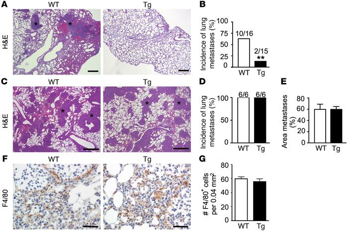 Spontaneous lung metastasis from primary B16F10 melanomas is decreased i...