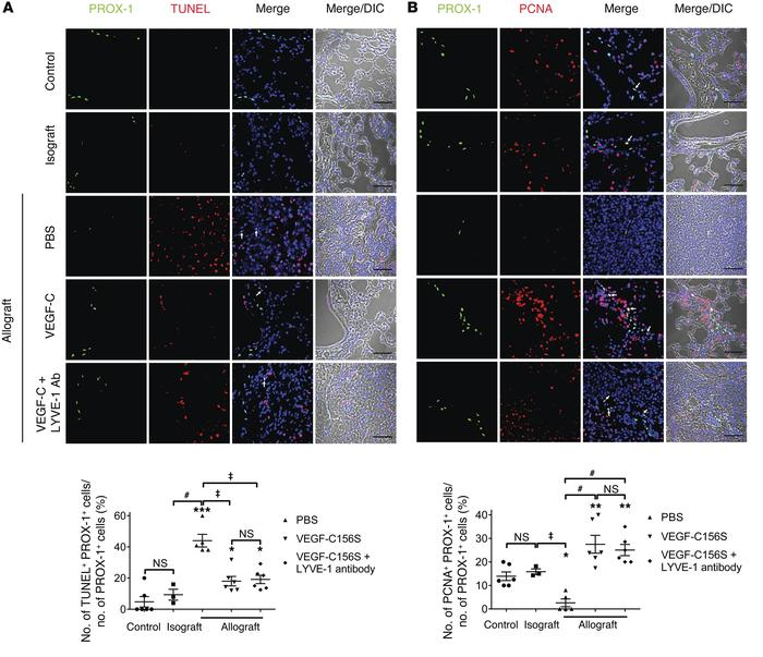VEGF-C156S treatment ameliorates LEC apoptosis and promotes LEC prolifer...