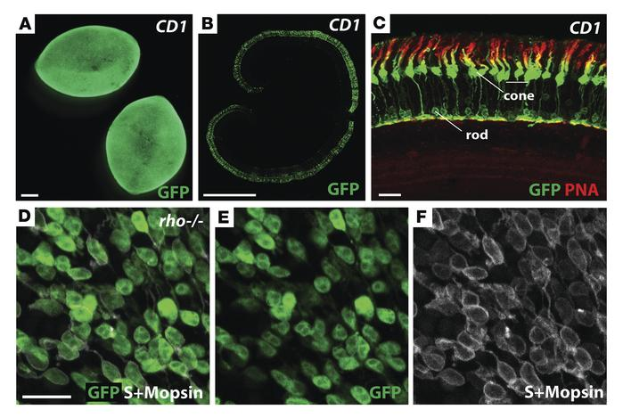 Cones express a high level of GFP from an AAV8 with a CMV promoter. (A) ...