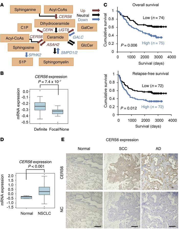 CERS6 overexpressed in NSCLC and inversely correlated with clinical out...