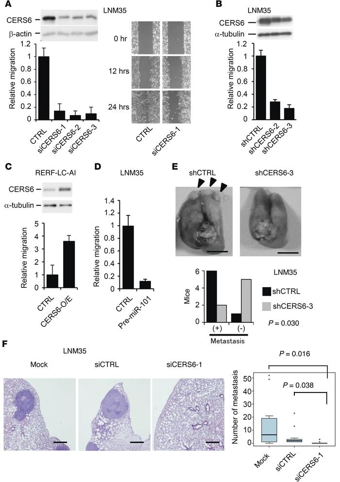CERS6 may promote lung cancer metastasis. (A) Immunoblot analysis with a...