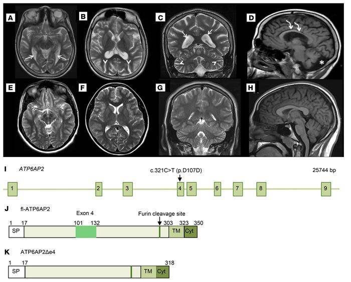 Cerebral atrophy in a patient carrying the ATP6AP2 c.321C>T (p.D107D)...