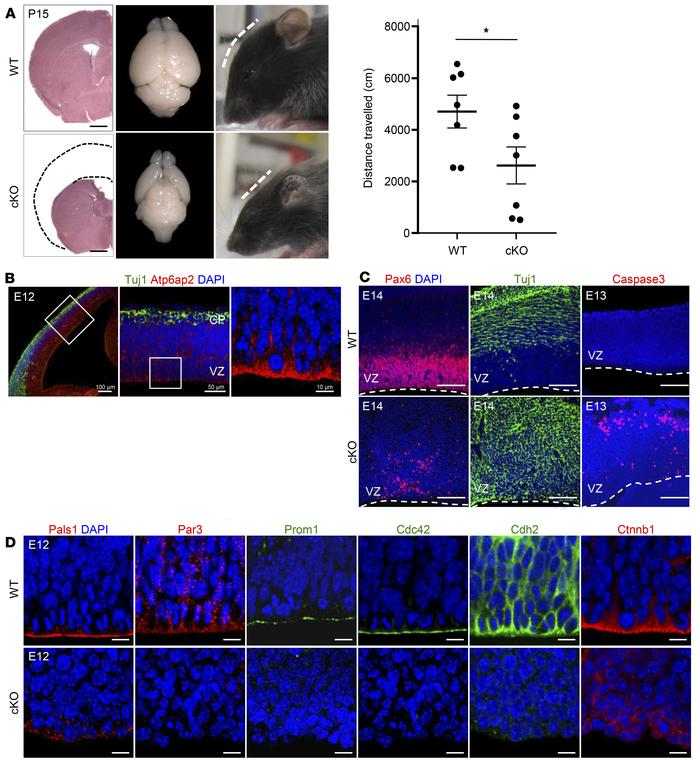 Atp6ap2 is required for cortical development. (A) Left panel: Absence o...
