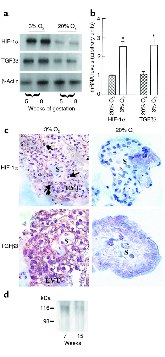 Expression of HIF-1α villous explants exposed to different oxygen tensio...