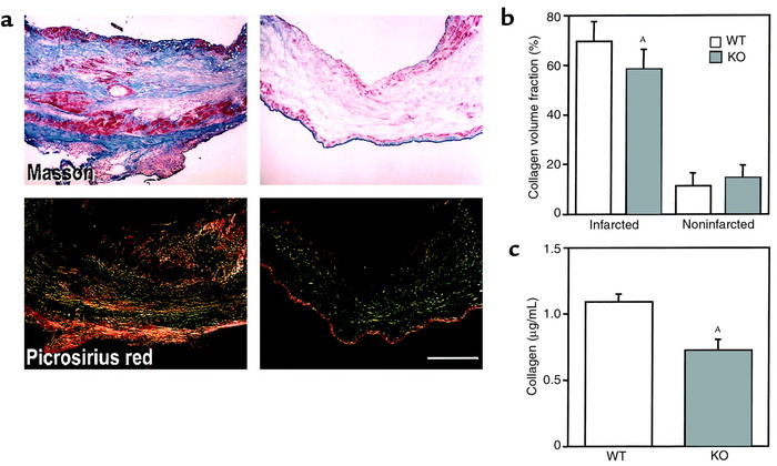 (a) Representative examples of staining with Masson's trichrome and picr...