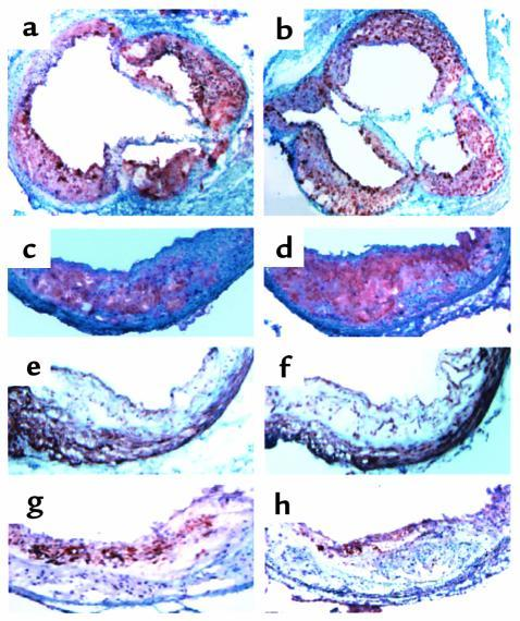 Atherosclerosis in MPO wild-type/LDLR-deficient and MPO-deficient/LDLR-d...