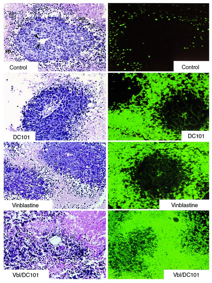 Vinblastine, DC101, or combination therapy induces tumor cell apoptosis ...
