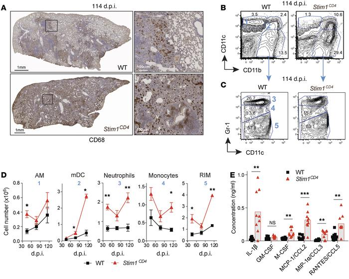 STIM1 in T cells controls myeloid cell infiltration of Mtb-infected lung...
