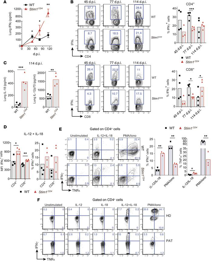 STIM1 is required for IFN-γ production during acute but not chronic Mtb ...