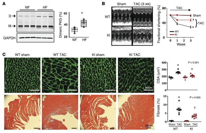 PKG1α oxidation at C42 increases in failing and hypertrophied myocardium...