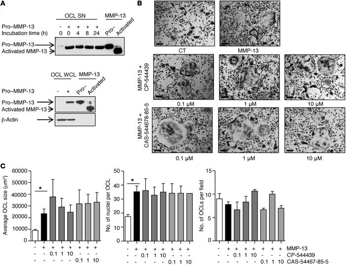 MMP-13–dependent osteoclastogenesis proceeds independently of pro–MMP-13...