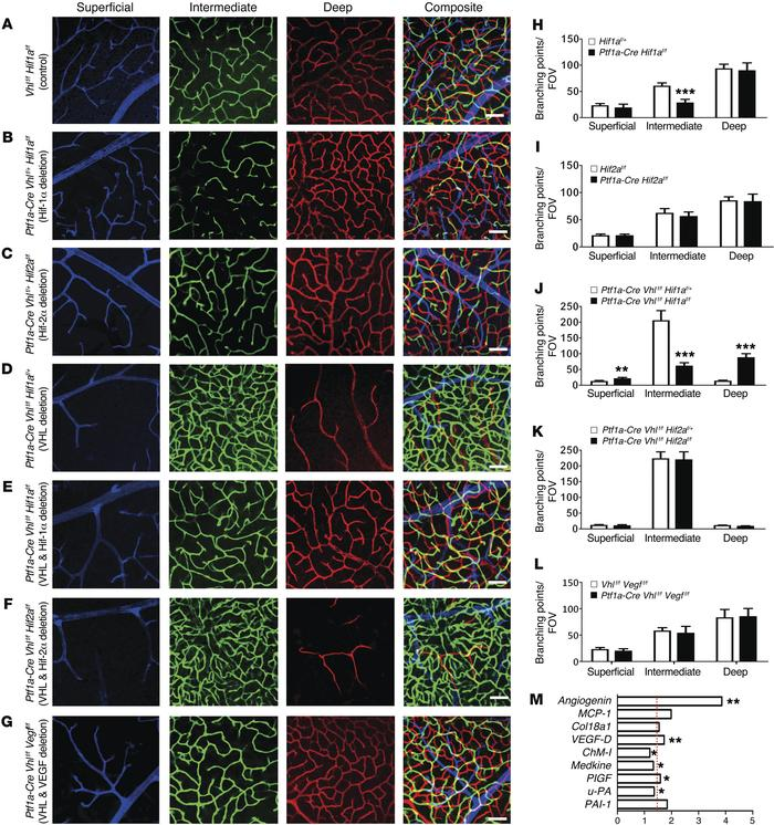VHL/HIF-1α/VEGF signaling regulates angiogenesis in the intermediate ple...