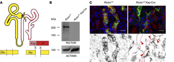 mTORC2 is expressed in distal tubular cells and can be efficiently targe...