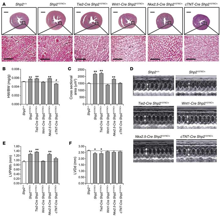 Endothelial expression of NSML alone recapitulates the adult-onset cardi...