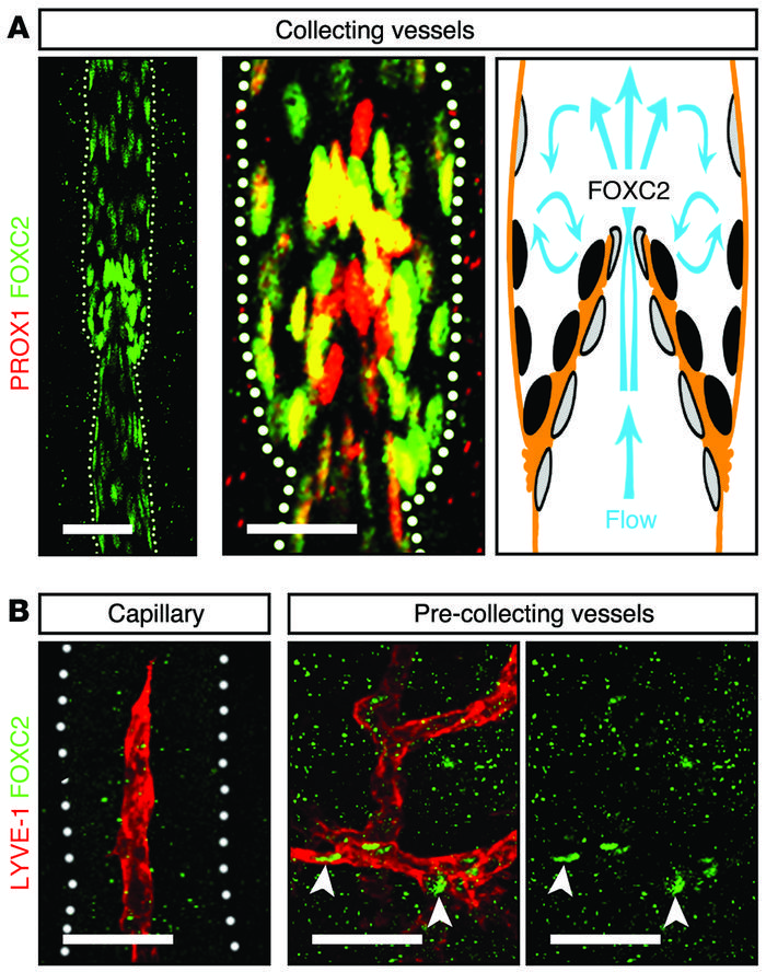 FOXC2 expression pattern in postnatal lymphatic vessels. (A) In P8 mesen...