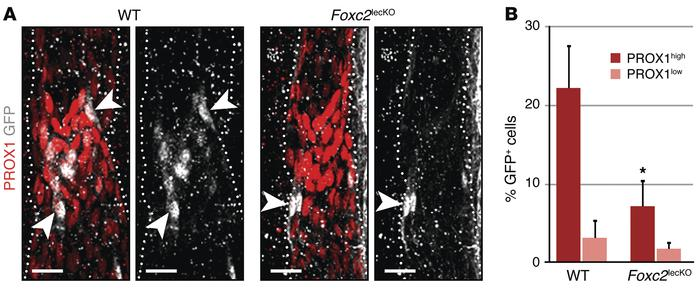 FOXC2 protects valve cells in vivo. (A) Foxc2lecKO cells are not retaine...