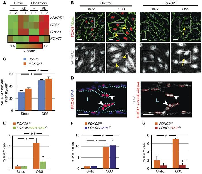 FOXC2 restricts YAP1/TAZ signaling in LECs under disturbed flow. (A) YAP...