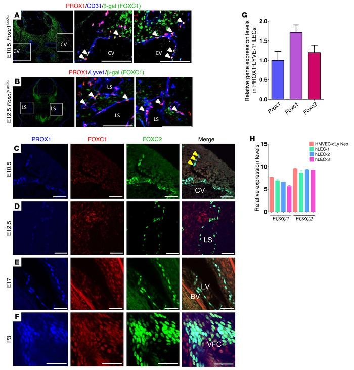 FOXC1 and FOXC2 are coexpressed in LEC progenitors and lymphatic valve-f...
