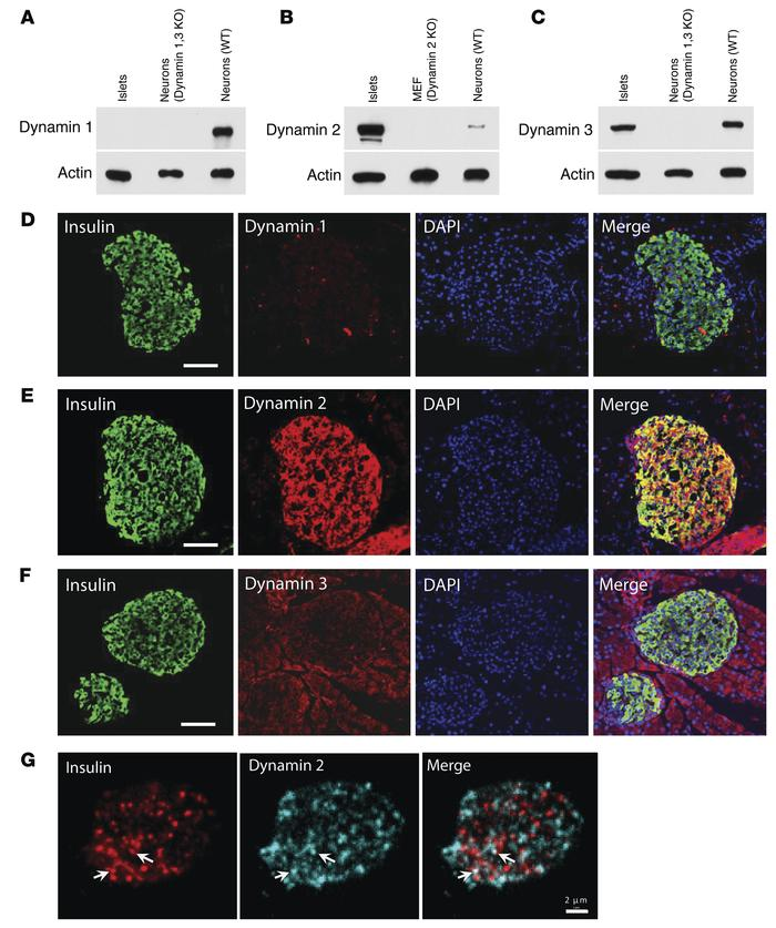 Dynamin isoforms in mouse pancreatic islets. (A–C) Western blots for dyn...