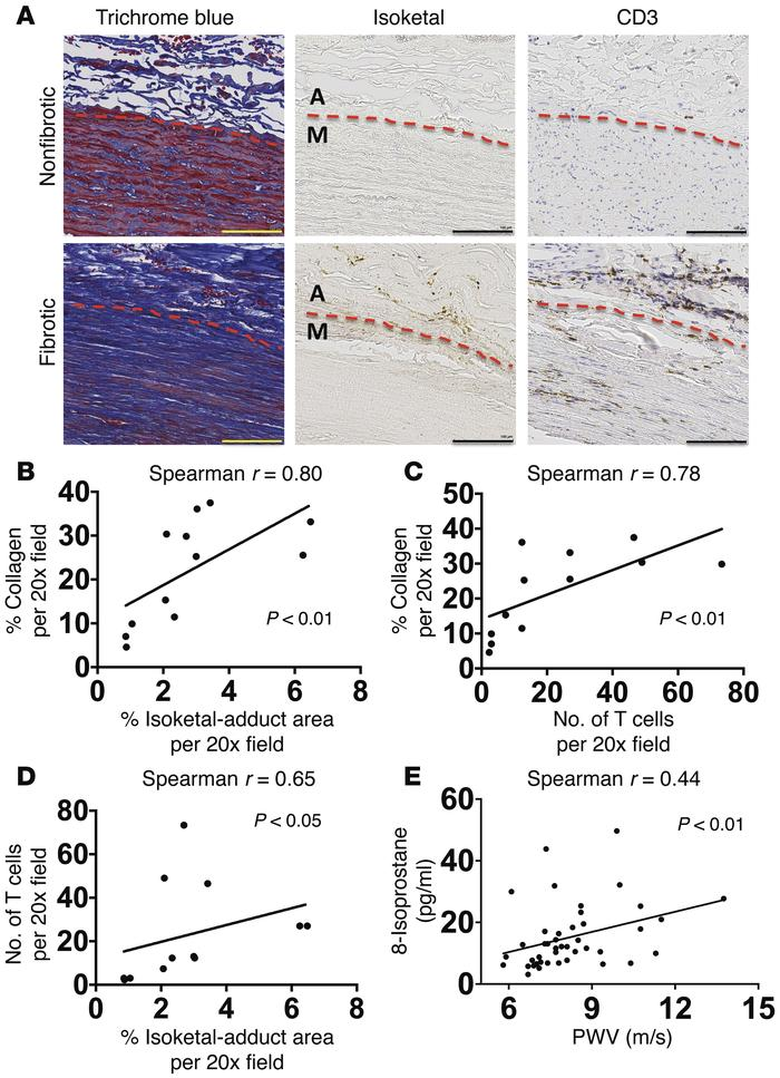 Role of isoketal and oxidation in aortic collagen deposition and stiffen...