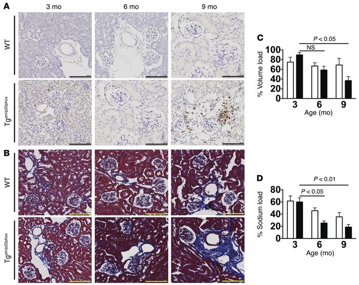 Development of age-related renal inflammation, fibrosis, and dysfunction...