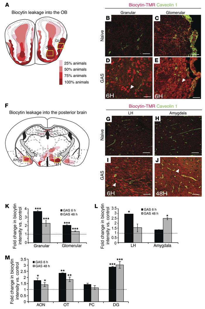 T cell infiltration into the brain is associated with BBB leakage. (A an...