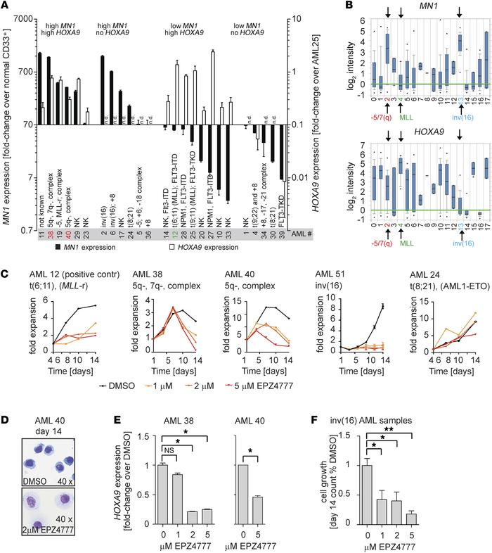 HOXA9 expression and sensitivity to DOT1L inhibition in MN1hi AML patie...
