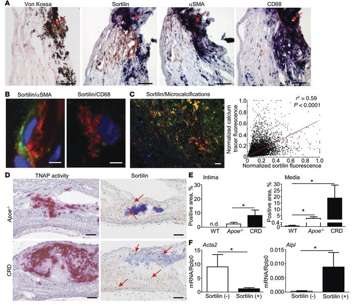 Sortilin localizes to calcified tissue from humans and mice with CRD. (A...