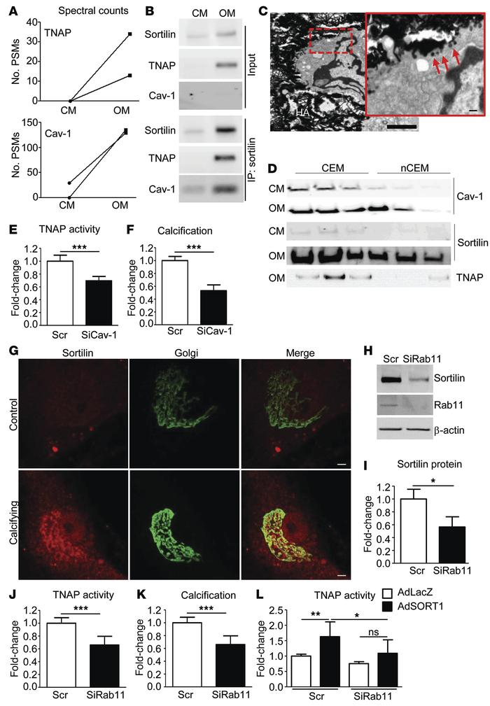 TNAP interacts with sortilin in calcifying SMCs. Rab11 controls sortilin...