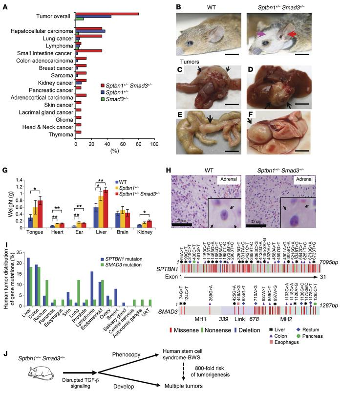 Sptbn1+/– Smad3+/– mice develop multiple tumors and phenocopy features ...