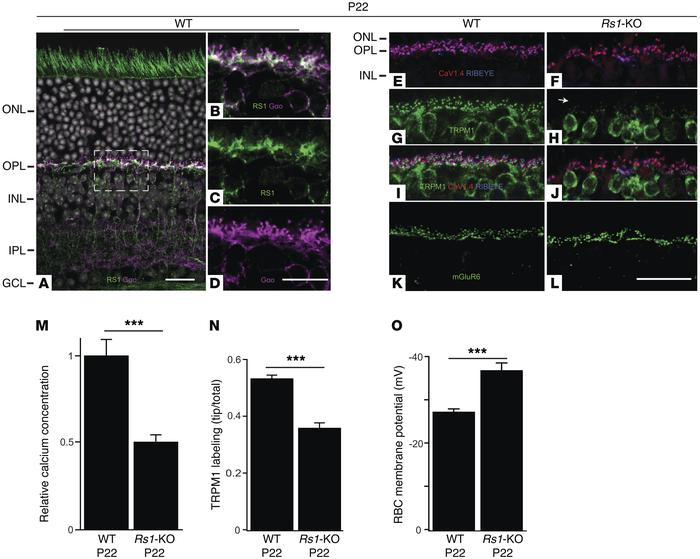 Photoreceptor synaptic calcium deficiency and bipolar TRPM1 channel anom...
