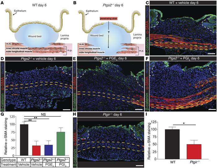 PGI2 is necessary to prevent loss of α-SMA staining after mucosal injury...