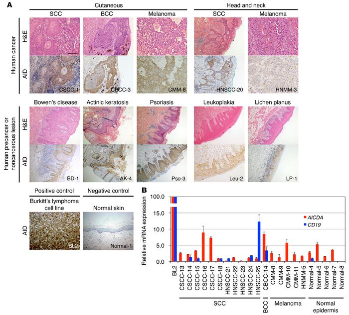 AID expression in human skin cancer and head and neck cancer. (A) Repres...