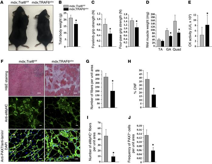 Depletion of TRAF6 in satellite cells exacerbates myopathy in mdx mice. ...