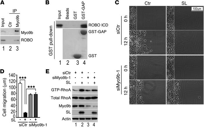 Myo9b is a key player in SLIT/ROBO signaling in lung cancer cells. (A) I...