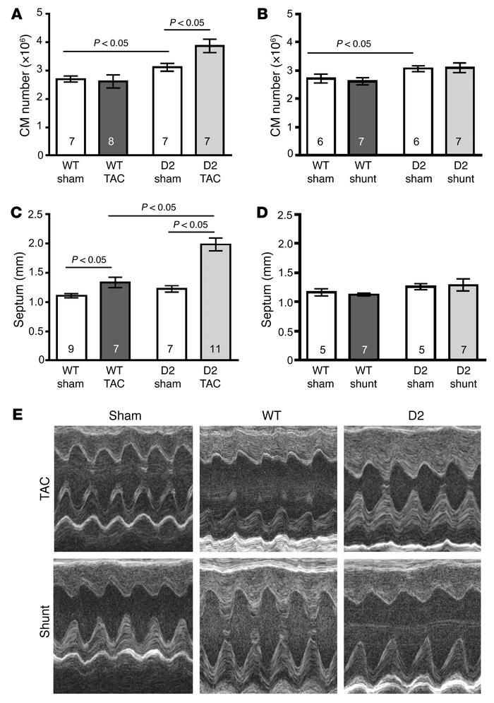 Increased cardiomyocyte number and wall thickness in D2 mice following T...