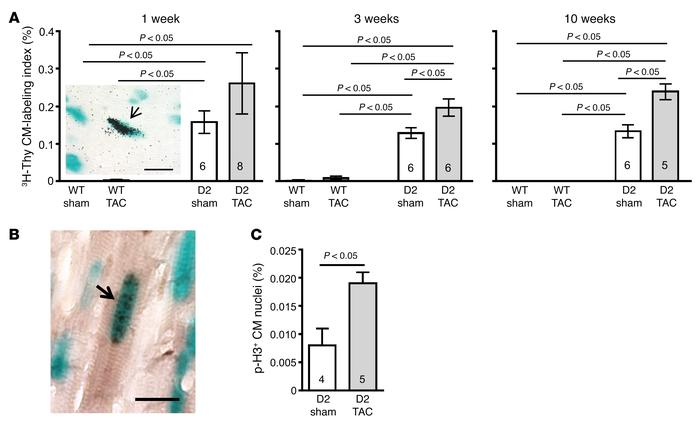 Increased cardiomyocyte cell cycle activity in D2 mice following TAC sur...