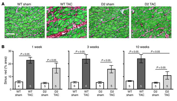 Reduced myocardial fibrosis in D2 mice after TAC surgery. (A) Representa...