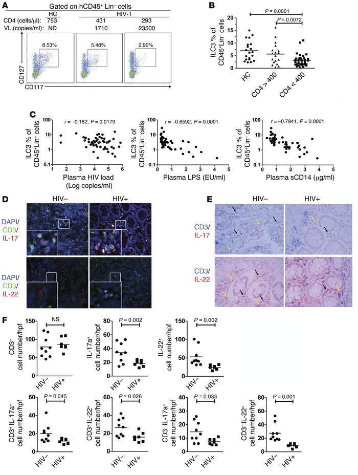HIV-1 disease progression is associated with depletion of ILC3 cells in ...