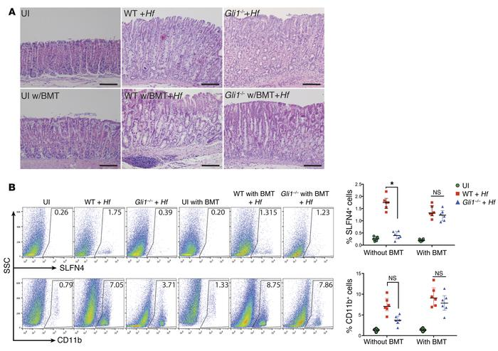 Bone marrow–derived cells are sufficient to induce SPEM with H. felis. (...