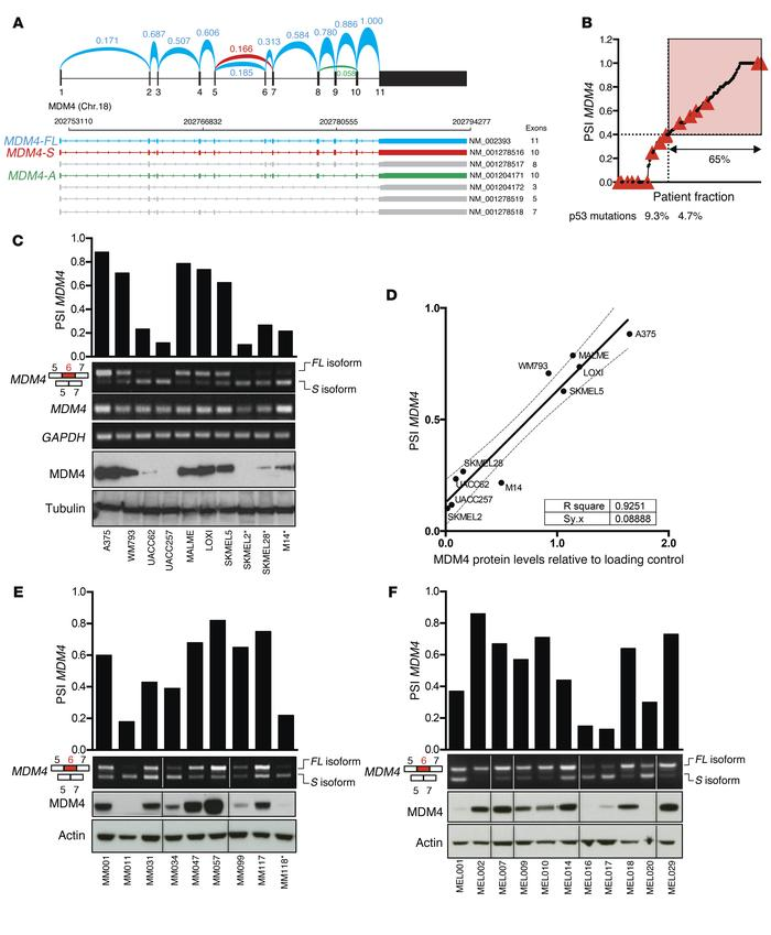Enhanced exon 6 inclusion leads to MDM4 expression in human melanoma. (A...