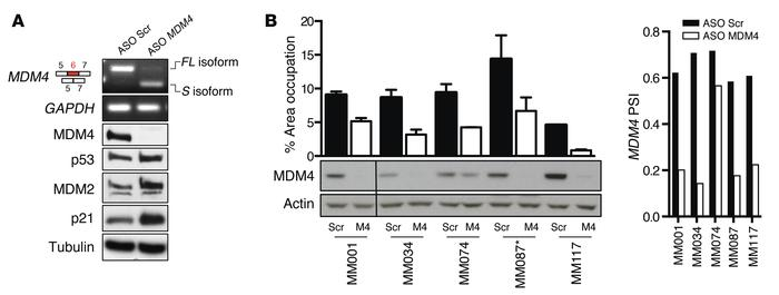 ASO-mediated exon 6 skipping decreases MDM4 protein abundance and melano...