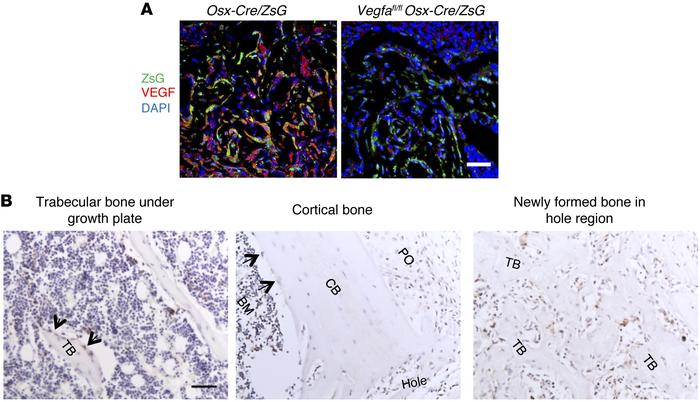 Osteoblastic lineage cells are an important source of VEGF at the bone-r...
